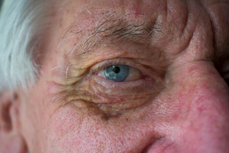 Hématomes : Comment les traiter efficacement ?
